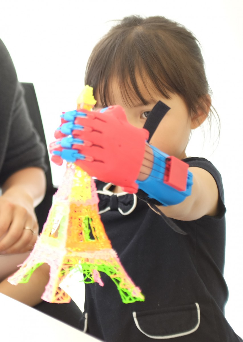 a young recipient of a 3D printed prosthetic